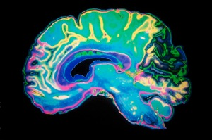 3 05 dementia doubling lower risk