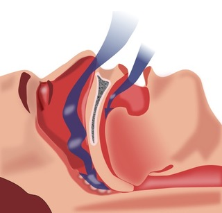 707 throat exercises snoring copy